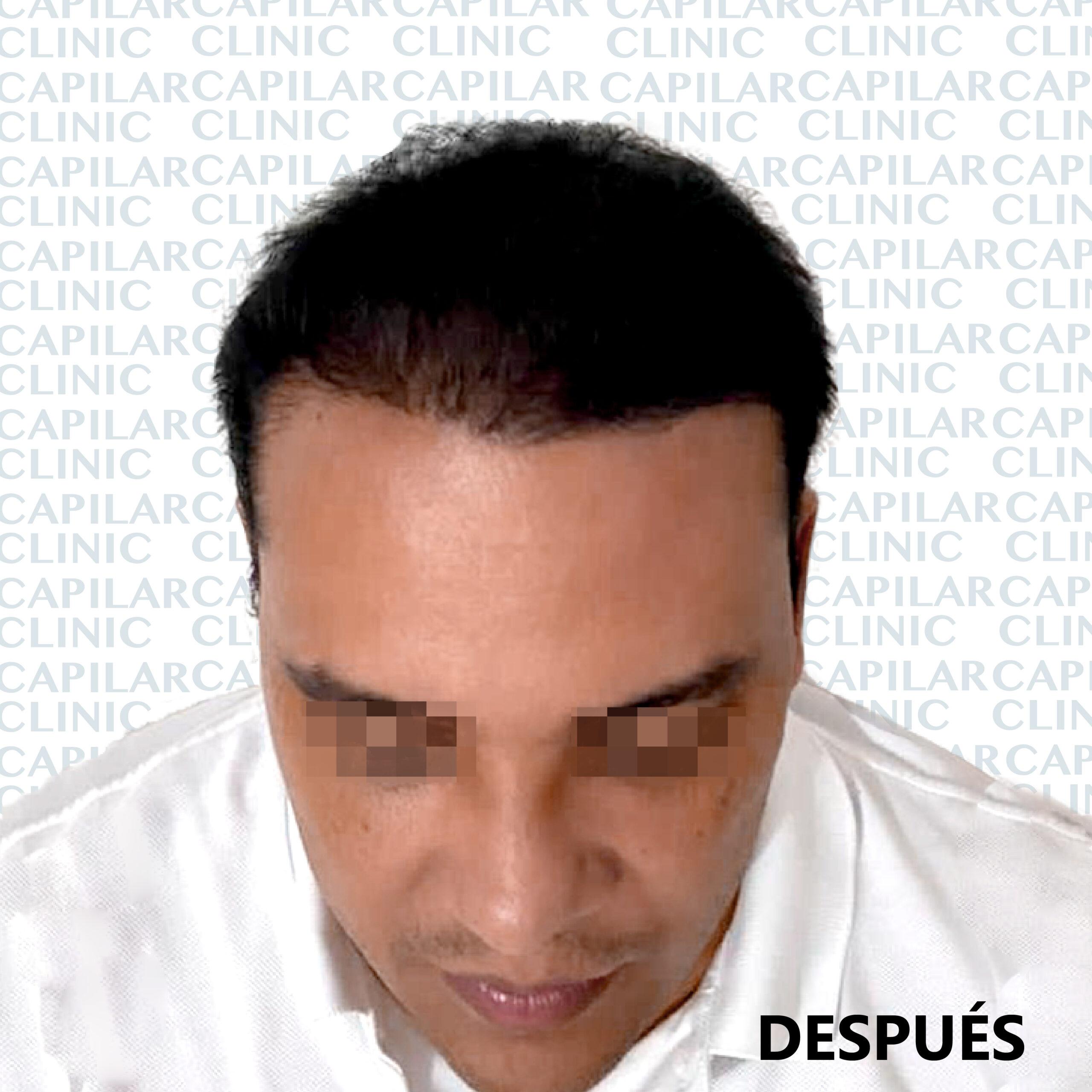 ANTES- DESPUES-02