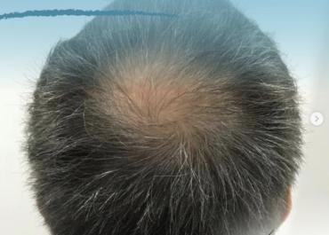 Alopecia en hombres